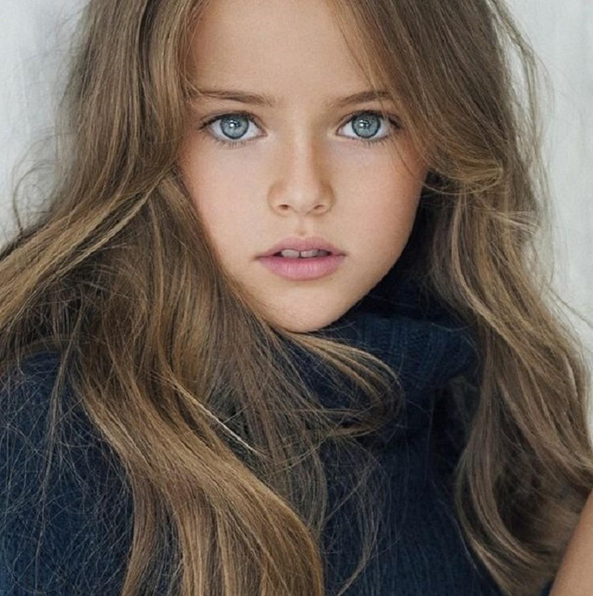 Эту девочку называли самой красивой в мире – посмотрите на нее сейчас! Как она изменилась!