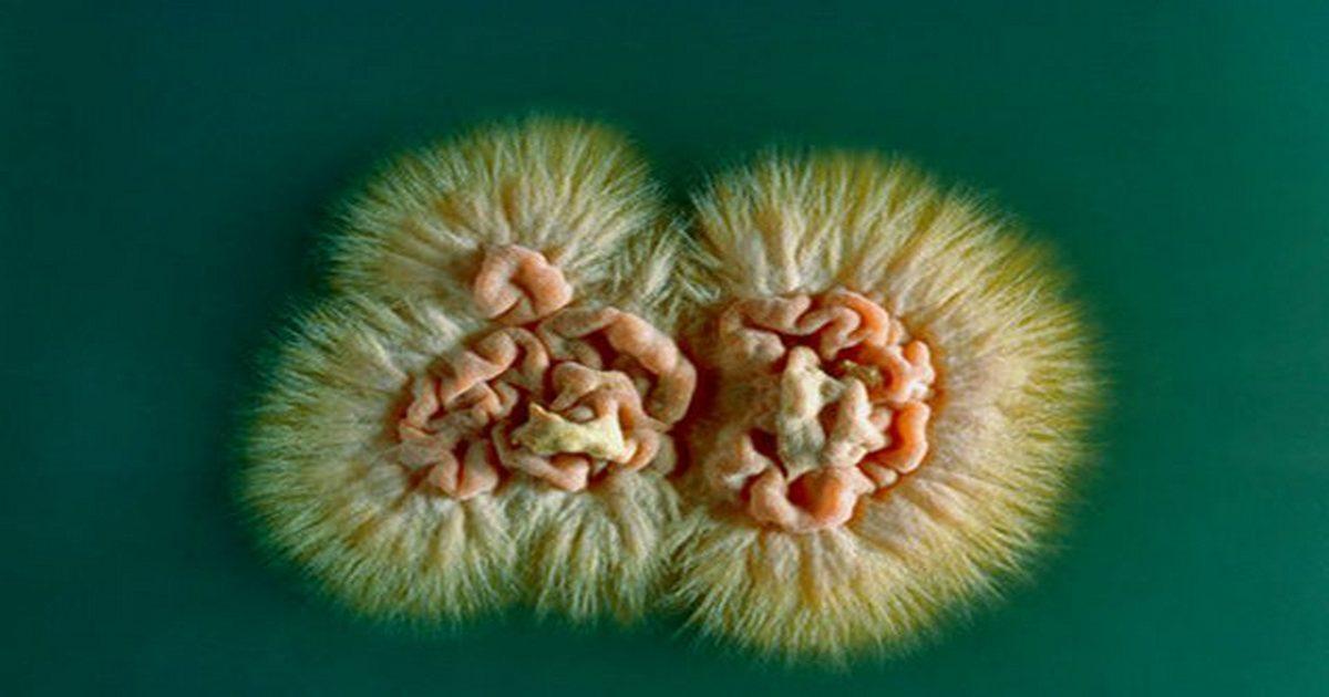 В нашем организме живут грибы. А мы сами их кормим, выращиваем и постоянно добавляем