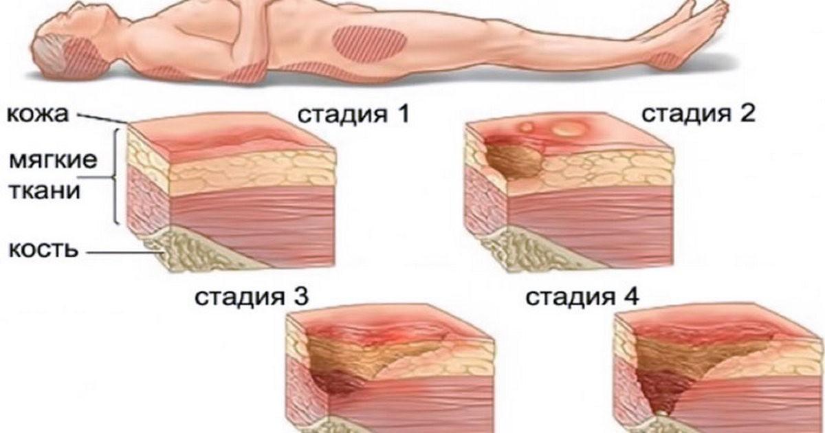 Веские причины, почему паста Теймурова должна быть в каждой аптечке