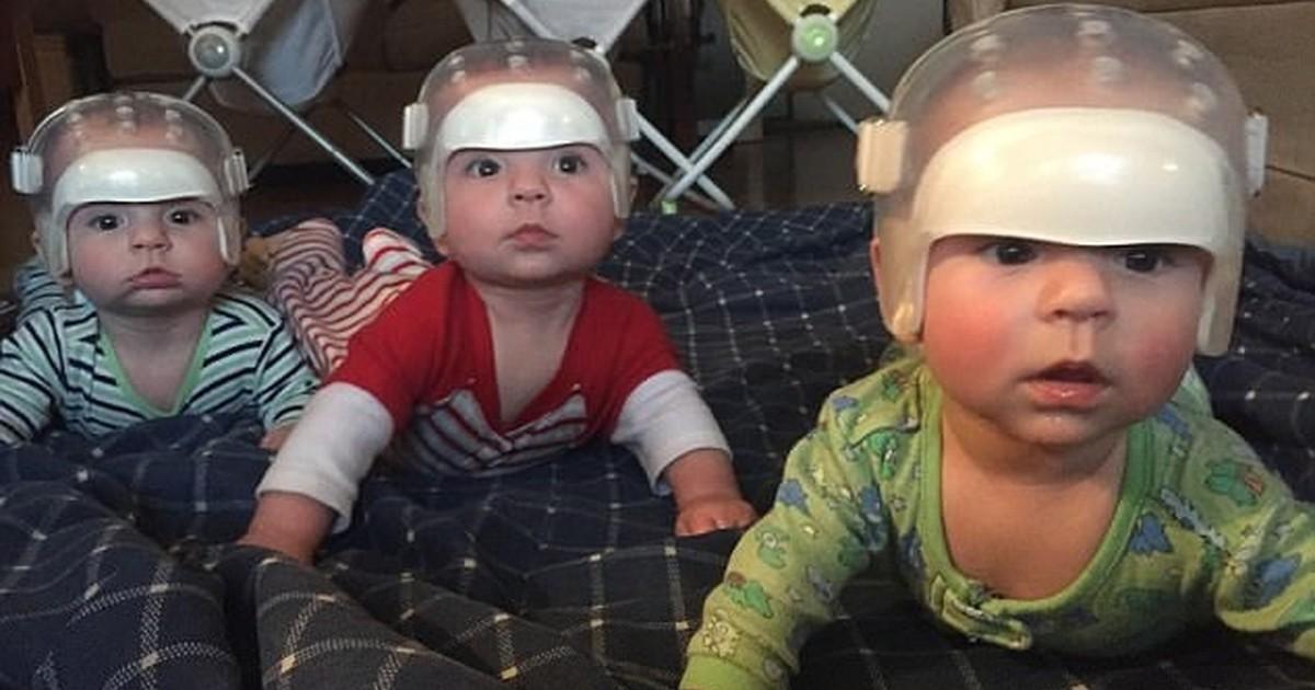 Тройняшки Ховард постоянно носят шлемы из-за редкого недуга
